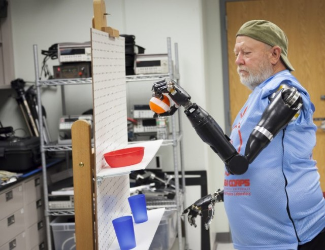 mind-controlled-prosthetics
